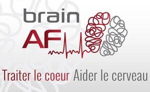 tude-brain---af-2
